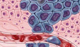 Псориаз связали с увеличением риска нескольких видов рака